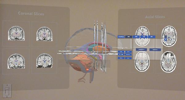 HB MRI